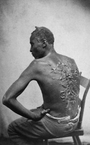 Gordon, an enslaved man, who received these scars as a result of beating by his enslavers. He later served in the Union Army